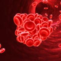 Blod clot 32 shutterstock_3010784